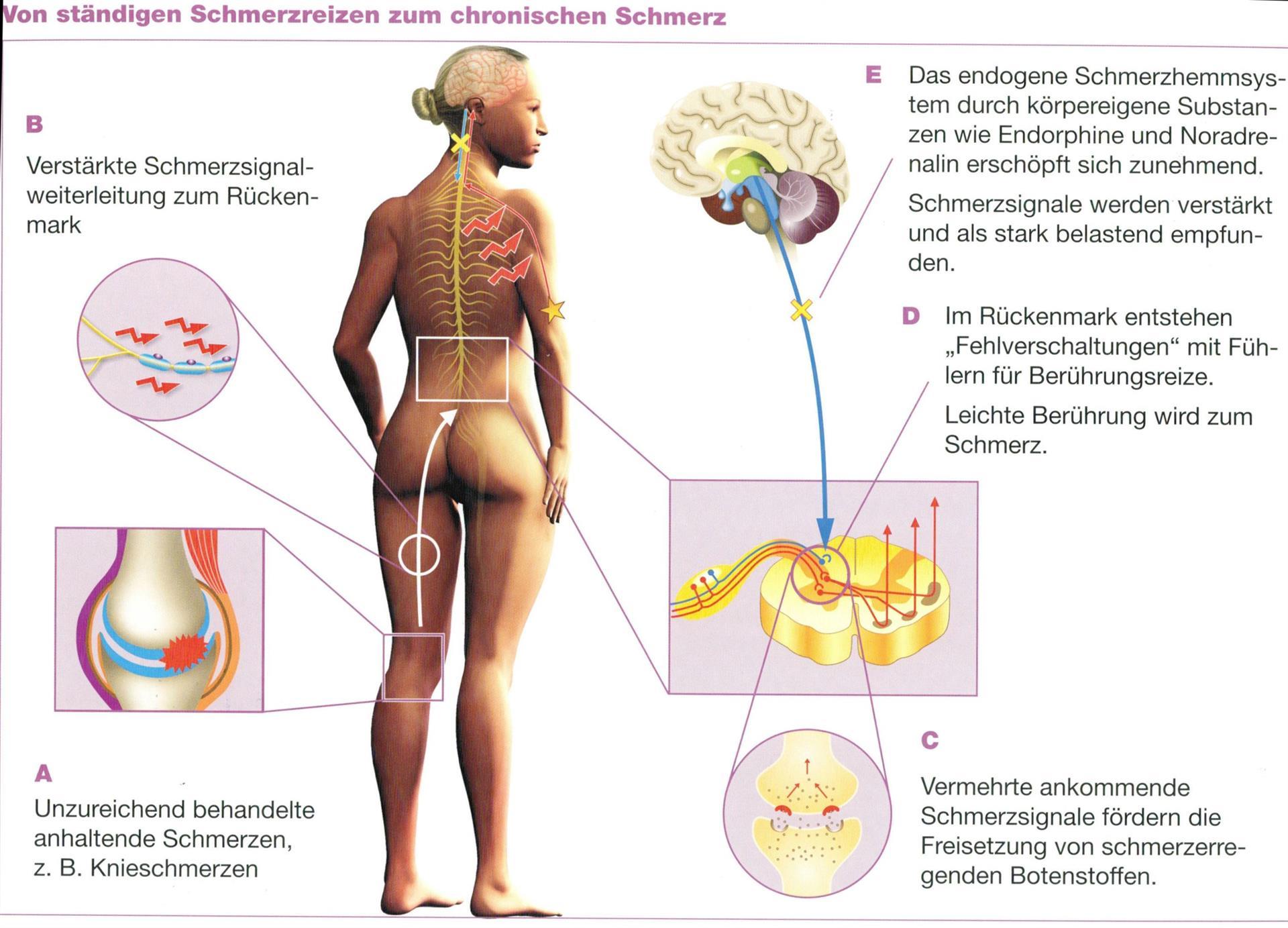 Schmerzen in der linken Flanke, Niere, Colon, Milz oder