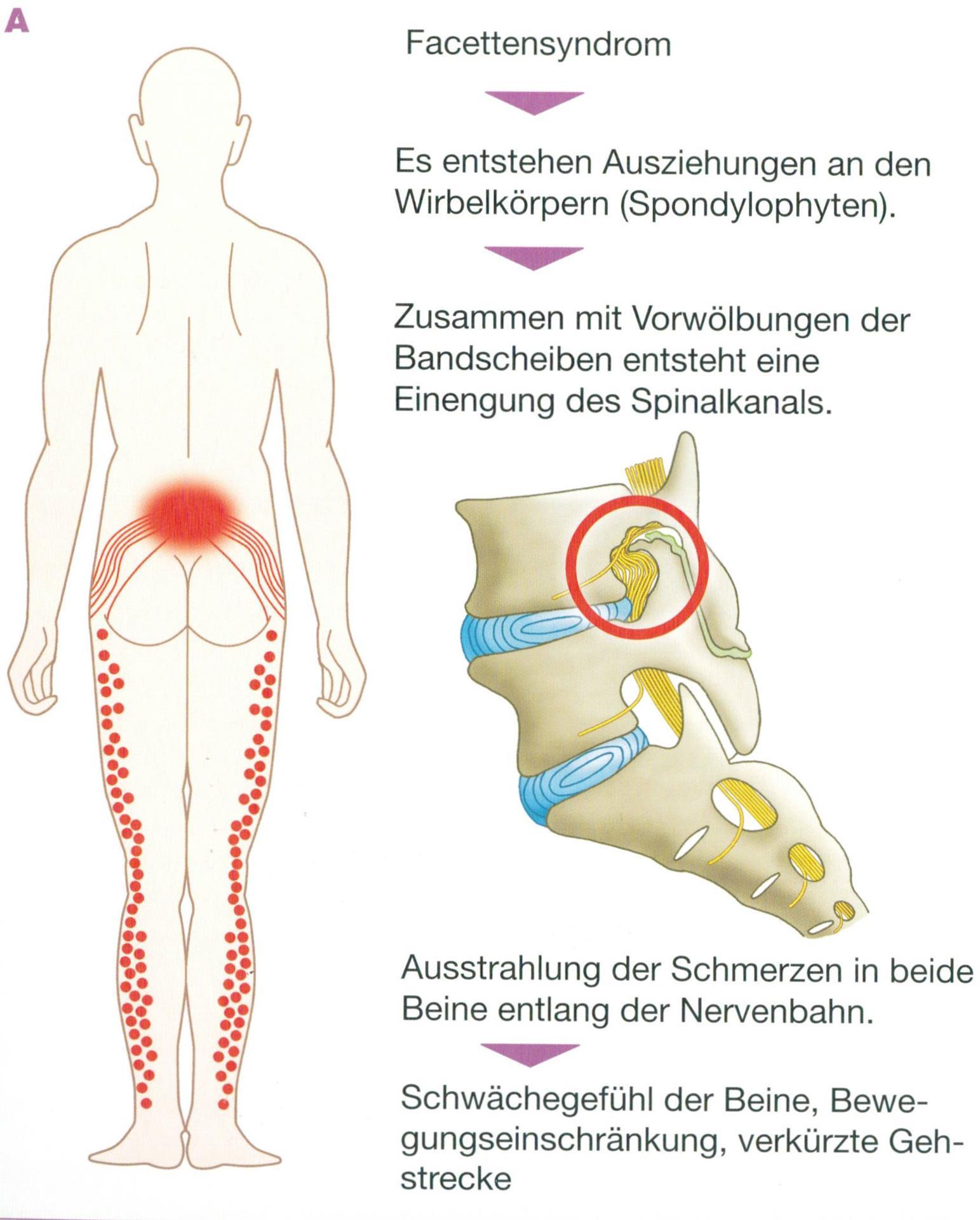 Gemütlich Facettengelenke Anatomie Ideen - Anatomie Von Menschlichen ...