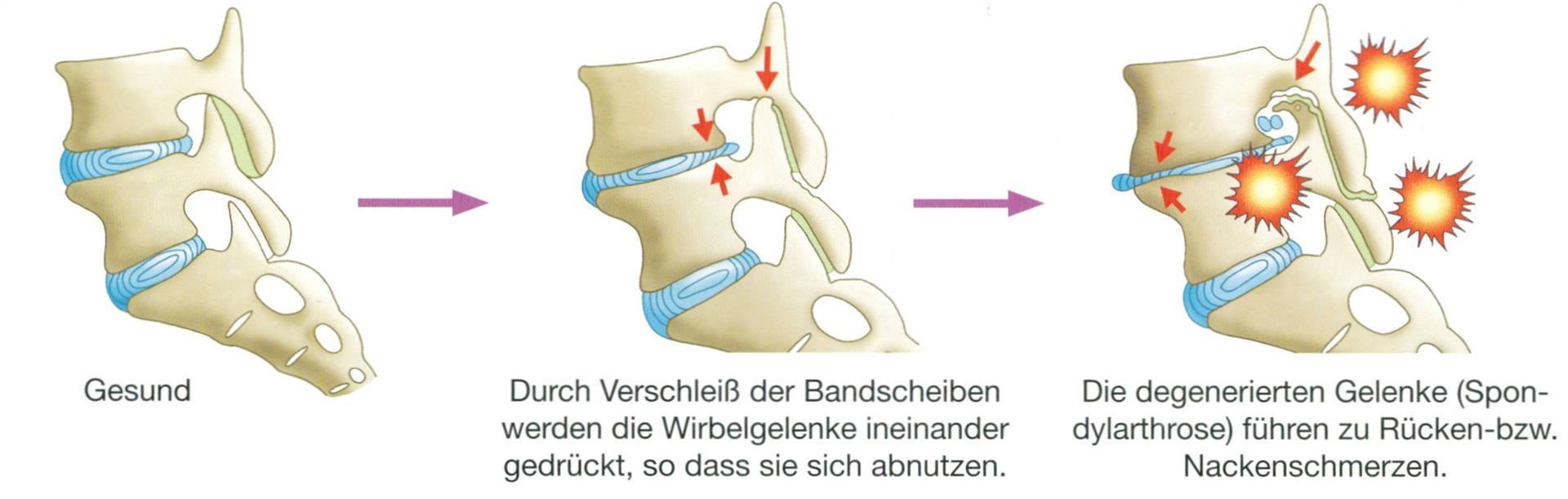 Ausgezeichnet Lws Bilder Ideen - Menschliche Anatomie Bilder ...